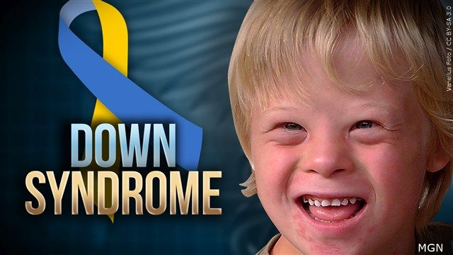 Down Syndrome Awareness Month focuses on awareness