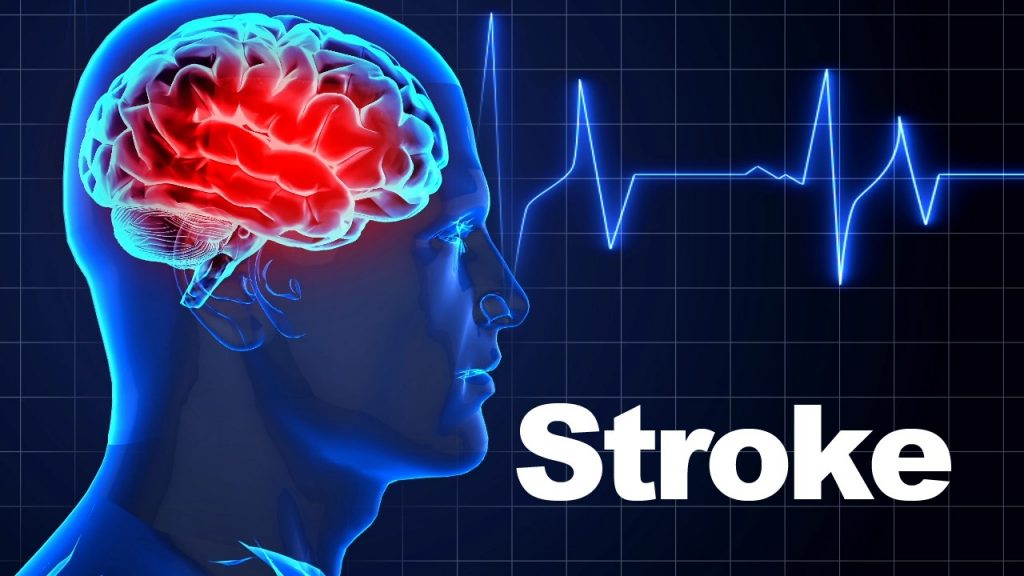 Know the Symptoms of Stroke and Reduce Your Risk